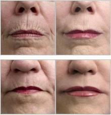 Flacidez Tissular Facial – Por Célia Campi