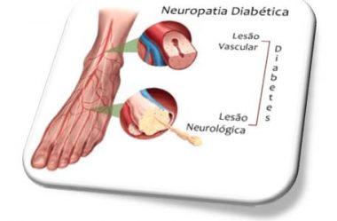 Neuropatia Diabética na Visão da MTC – Por Camille Elenne Egídio