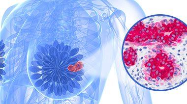 Drenagem Linfática Manual (DLM) no Tratamento Pós Cirúrgico de Câncer (CA) de Mama – Por Melissa Betel