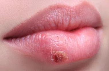 Herpes Zoster na Visão Medicina Tradicional Chinesa | Por Vânia Santos